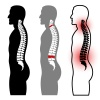vector human spine silhouettes